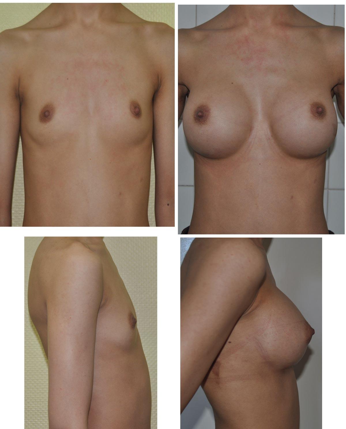 Augmentation mammaire par prothèses au gel de silicone.