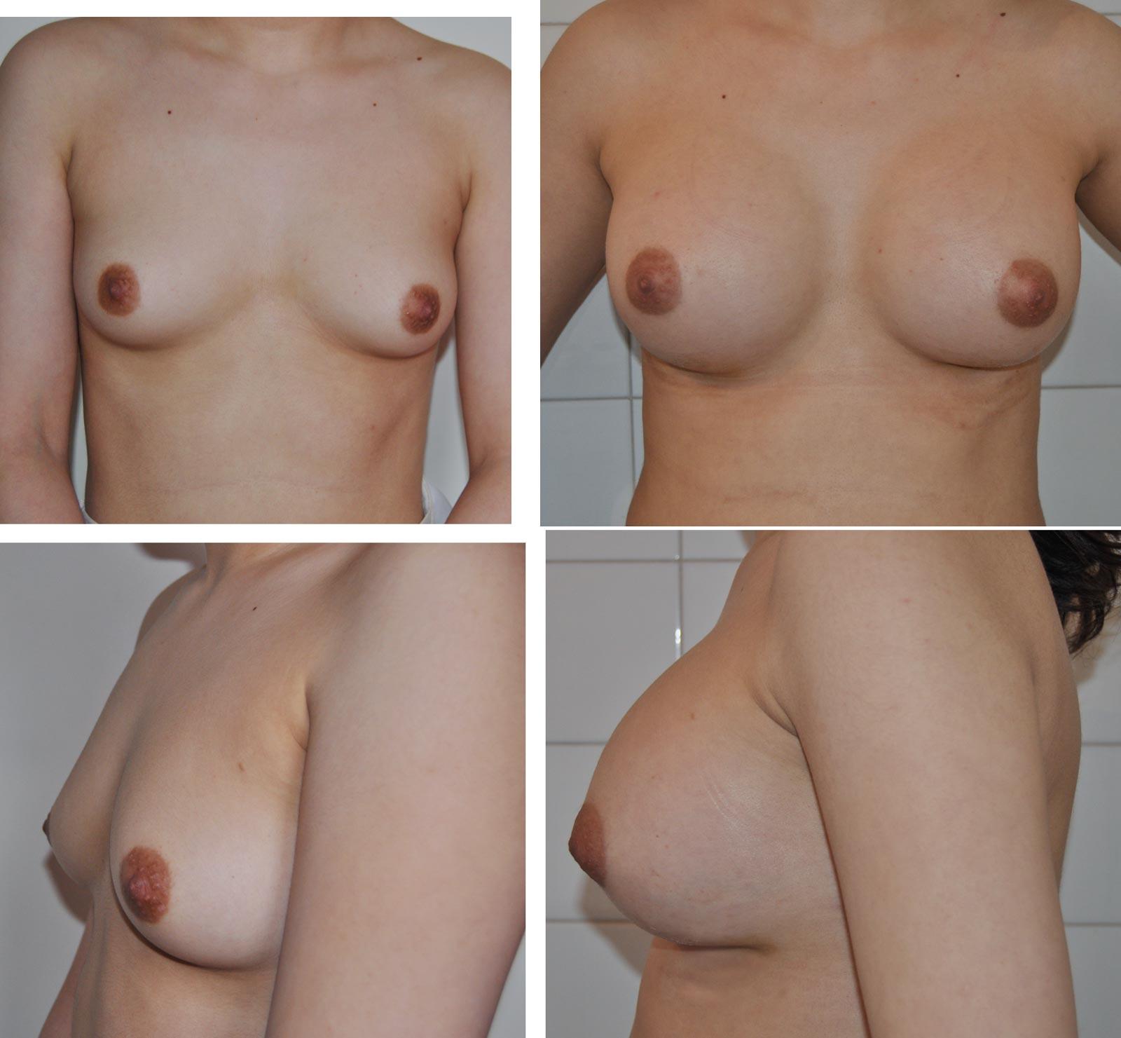 Augmentation mammaire par prothèses au gel de silicone par le Docteur Madjoudj Ahcène