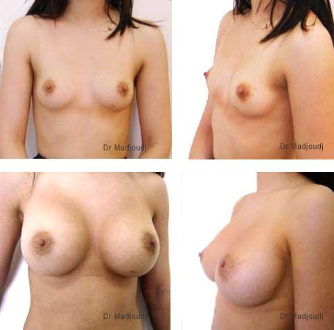 Augmentation mammaire par prothèses au serum salé.