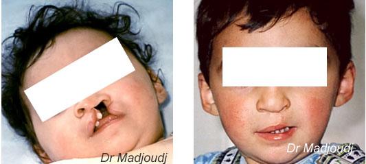 chirurgie fente en algérie