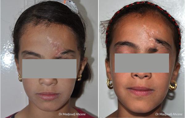 cicatrice du sourcil par le docteur Madjoudj