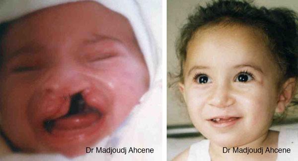 chirurgie de la fente chez l'enfant en Algérie