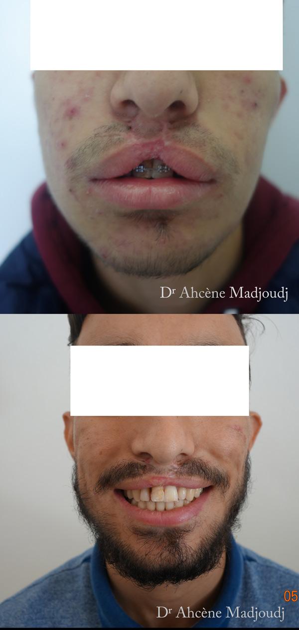 chirurgie des séquelles de fente