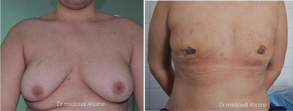 gynécomastie par le docteur Madjoudj Ahcene