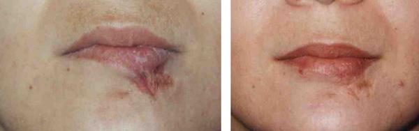 cicatrice des lèvres par le docteur Madjoudj
