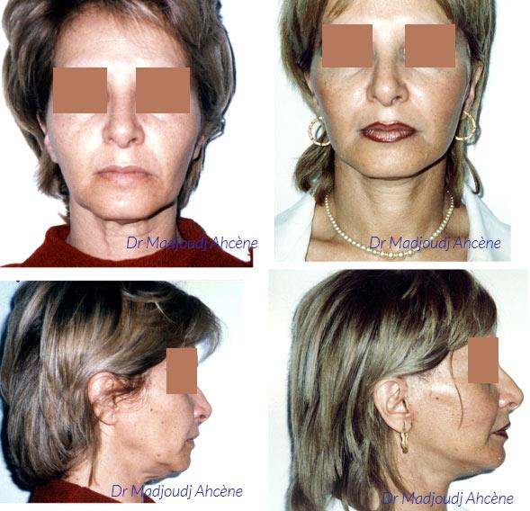 Lifting du cou et du visage par la technique du SMAS par le Docteur Madjoudj.