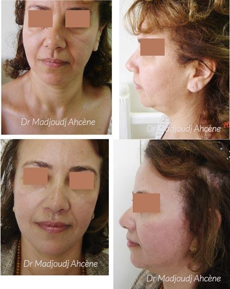 Lifting du cou et du visage par le Docteur Madjoudj