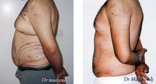 Liposuccion par le docteur Madjoudj Ahcène