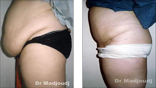 Abdominoplastie en Algérie par le docteur Madjoud Ahcène .