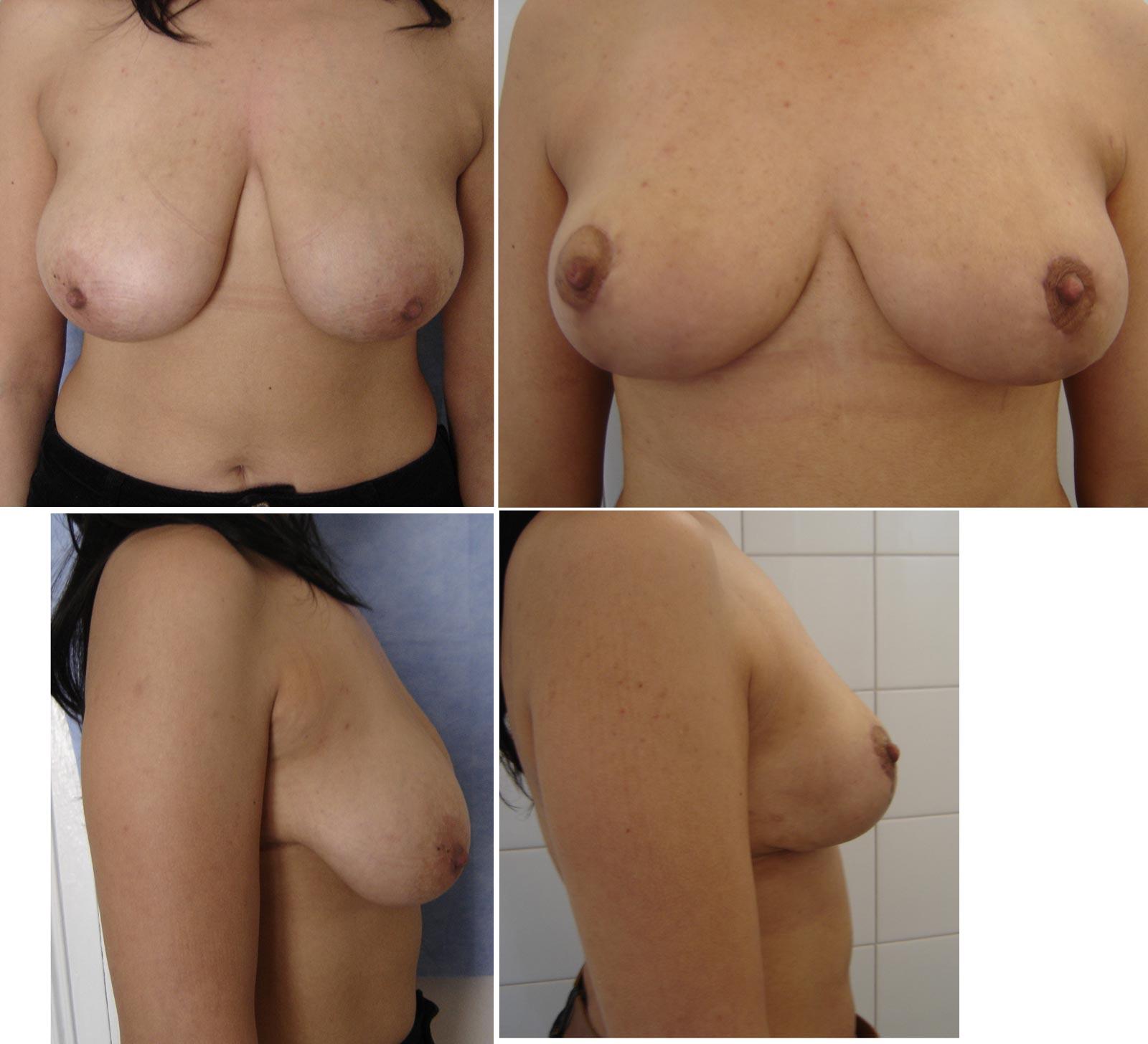 Ptose mammaire par le Docteur Madjoudj Ahcène.