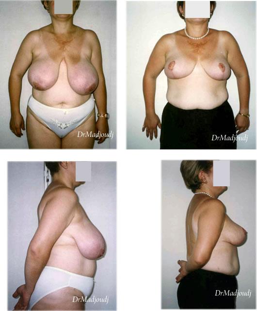 Réduction mammaire associée à une ptose mammaire par le Docteur Madjoudj Ahcène