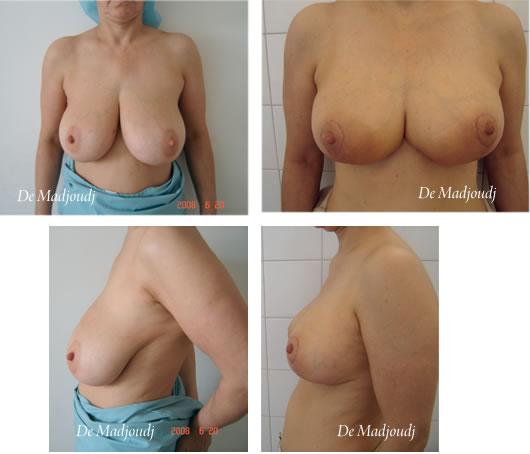 Réduction mammaire  par le Docteur Madjoudj Ahcène
