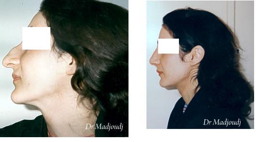 Rhinoplastie en Algérie par le docteur Madjoudj Ahcéne
