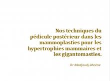 Les techniques des mammoplasties dans notre pratique finale