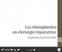 Les rhinoplasties en chirurgie réparatrice